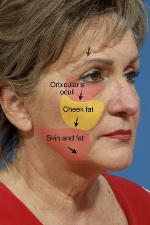 Composite Facelift - Sam T. Hamra, MD