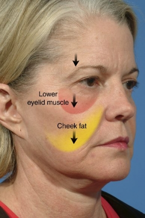 The Do Over Facelift Revisions Sam T Hamra Md