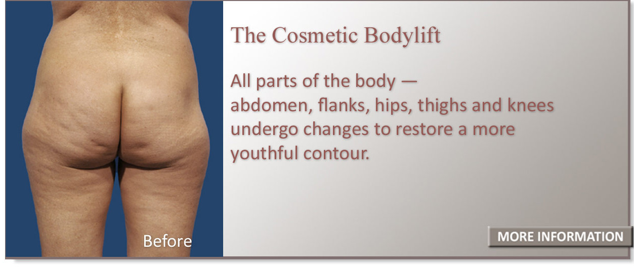All parts of the abdomen, flanks, hips, thighs and knees undergo changes to restore a more youthful contour.