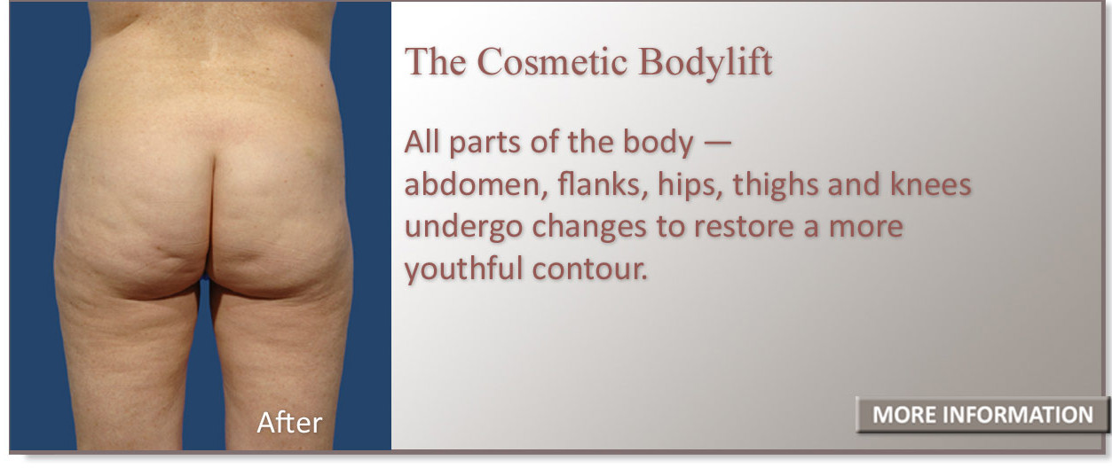 Patient image after the cosmetic body lift showing the restoration of a more youthful contour.