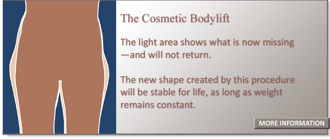The new shape created by this procedure will be stable for life,  as long as weight remains constant.
