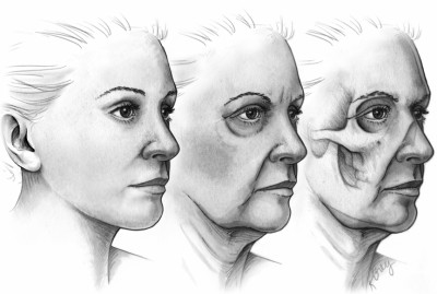 skeletonization of the aging face